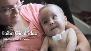 Máy in 3D cứu sống một em bé