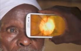 Ứng dụng giúp giảm nguy cơ mù loà
