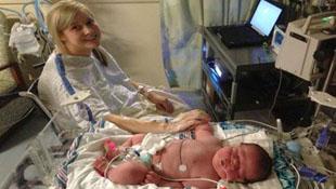 Cận cảnh bé sơ sinh nặng 6,4 kg