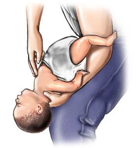 8 kỹ năng cấp cứu quan trọng hô hấp nhân tạo ép tim đau tim tắc thở dị vật chết đuối cầm máu bỏng hộ sản