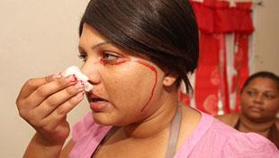 Những điều kỳ lạ về cô gái khóc và đổ mồ hôi ra... máu