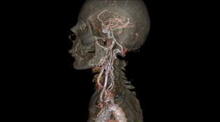 Xem nội tạng con người hiện rõ nét qua ảnh chụp cắt lớp CT